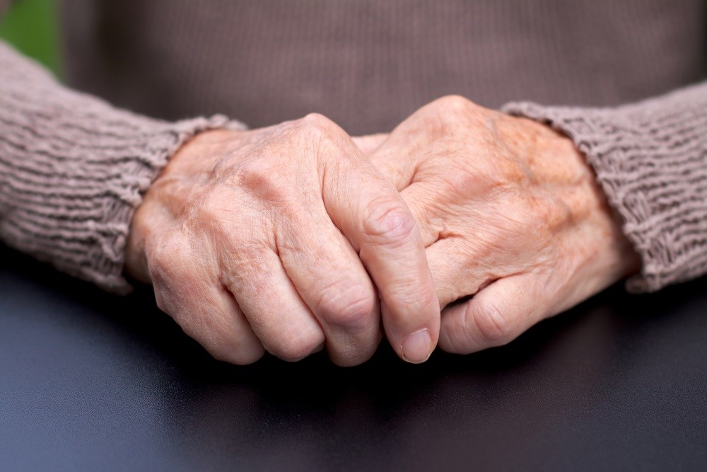 Patients with hand OA benefit from non-pharmacological treatment in a structured arthritis rehabilitation program.
