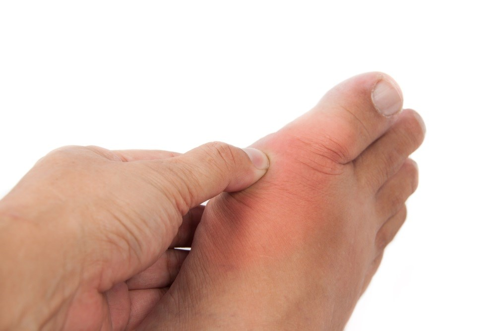 Multidimensional algorithms may help clinicians make a provisional diagnosis of gout.