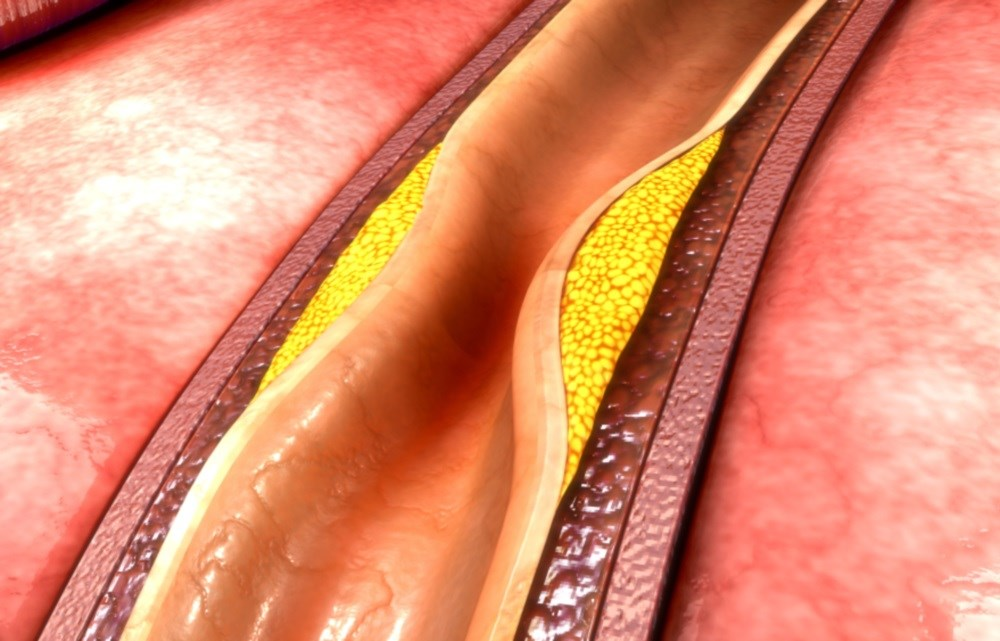 The AHA/ACC guideline updates the 2005 recommendations on PAD management.