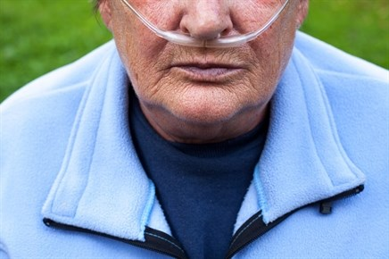 Proposing new concepts and definitions in COPD