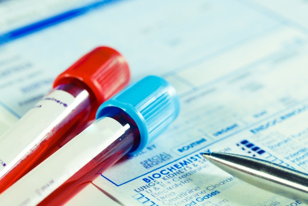 USPSTF recommends against routine serologic screening for genital herpes simplex virus