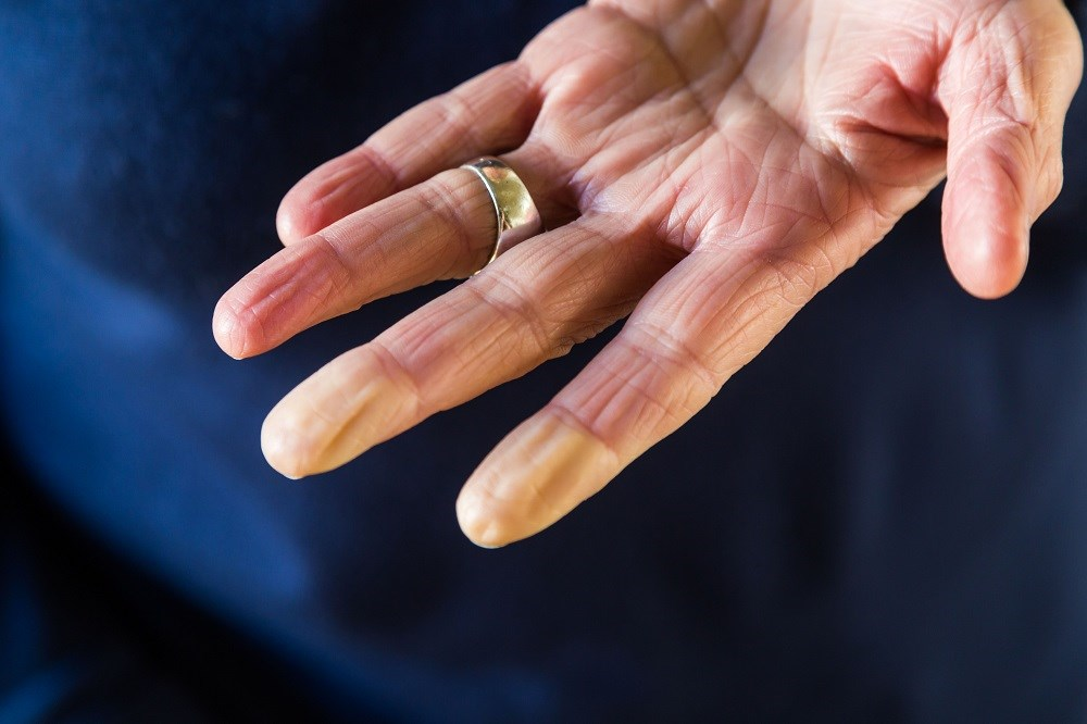 Raynaud phenomenon: a cold-weather condition