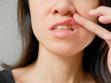 Food additives may affect recurrent aphthous stomatitis