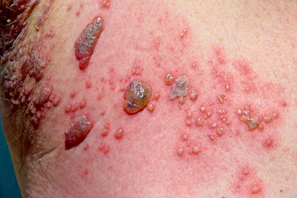 Shingles: a complete guide for clinicians