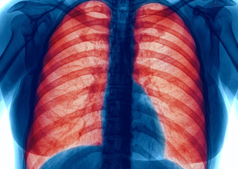 Pneumococcal vaccination reduces pneumonia risk in COPD patients