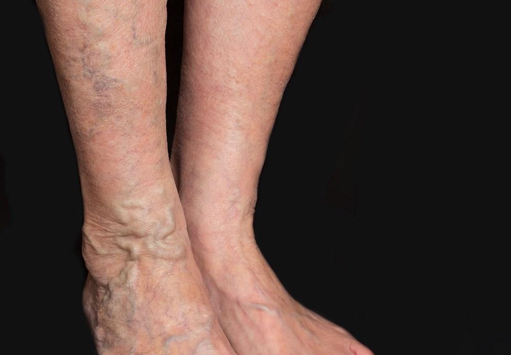 Blue skin in an elderly woman