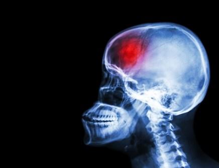 Prestroke psychosocial factors linked to poststroke depression risk in women