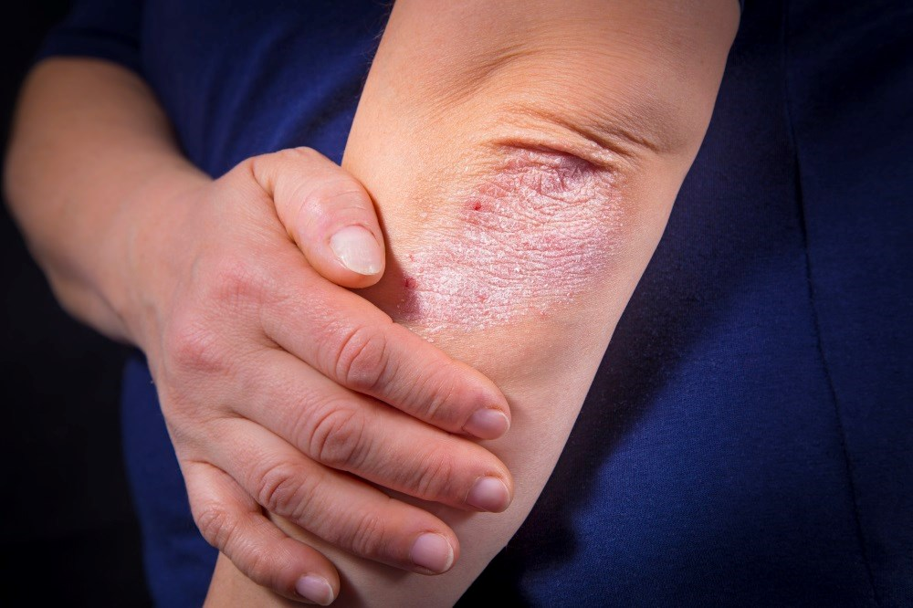FDA approves Siliq for treatment of plaque psoriasis