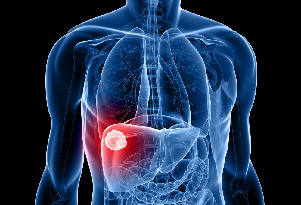 Personalized treatment for very early stage hepatocellular carcinoma