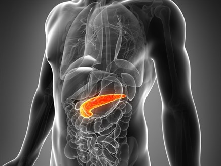 Acute pancreatitis may reveal pancreatic cancer at earlier stage