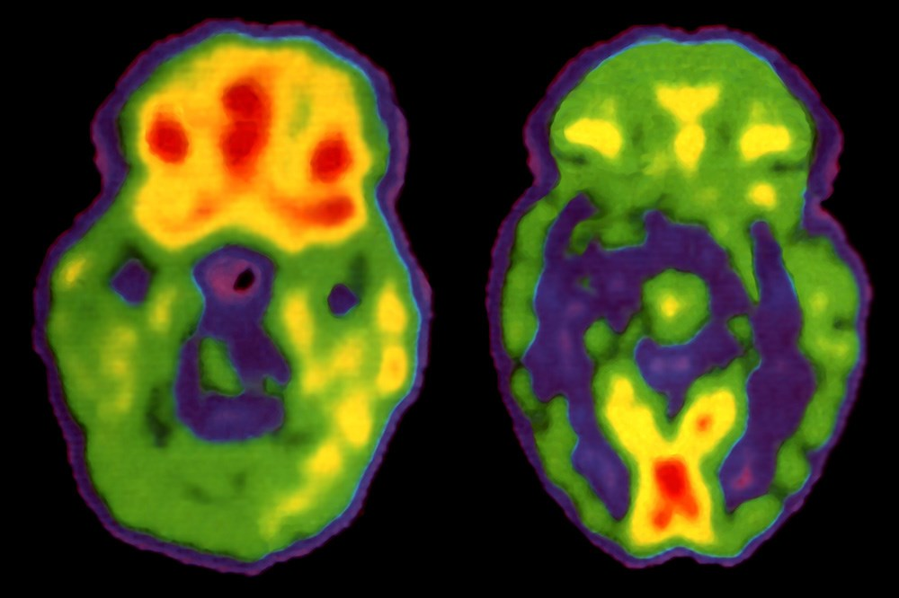 PET scans of a healthy patient (<i>left</i>) and a patient with schizophrenia (<i>right</i>).