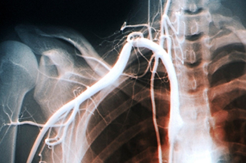 An angiogram of the right subclavian artery in a patient with thoracic outlet syndrome.
