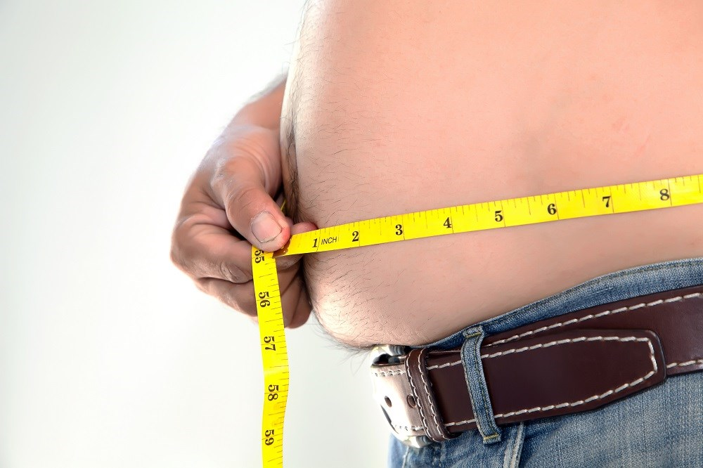 A high BMI is associated with an increased risk for severe liver disease, and the risk is higher in those who also have type 2 diabetes mellitus.