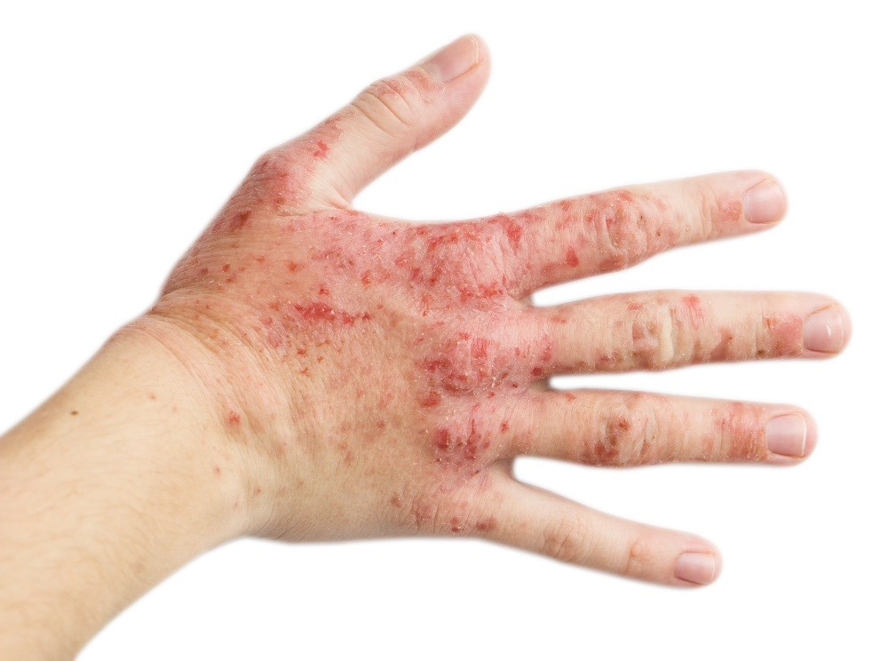 Dupixent has been approved to treat moderate-to-severe eczema that is not well controlled by topical medication.