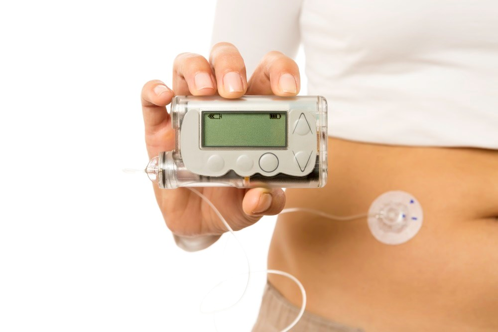Adolescents with type 2 diabetes decreased HbA1c levels after using insulin pump therapy for 3 months.