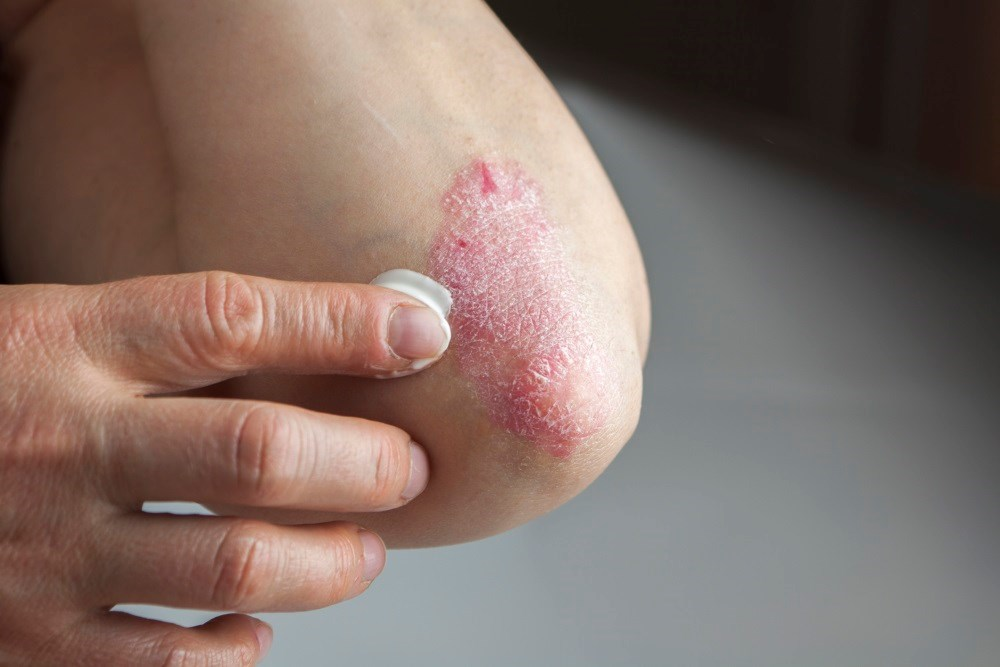 Severe Adrenal Deficiency With Topical Steroid Application for Psoriasis