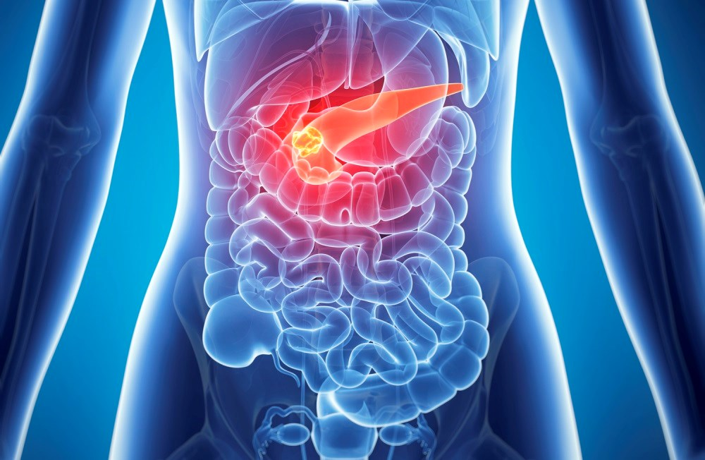 Metastatic pancreatic cancer: a new clinical practice guideline