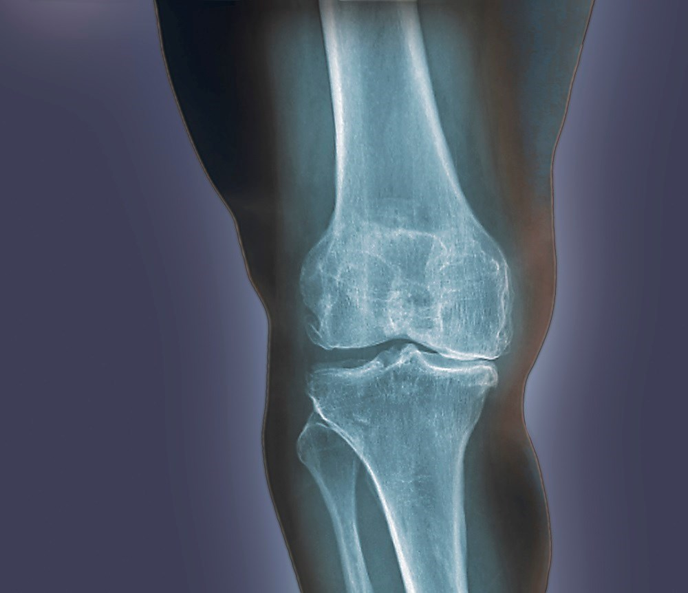 Metabolic syndrome not linked to knee osteoarthritis