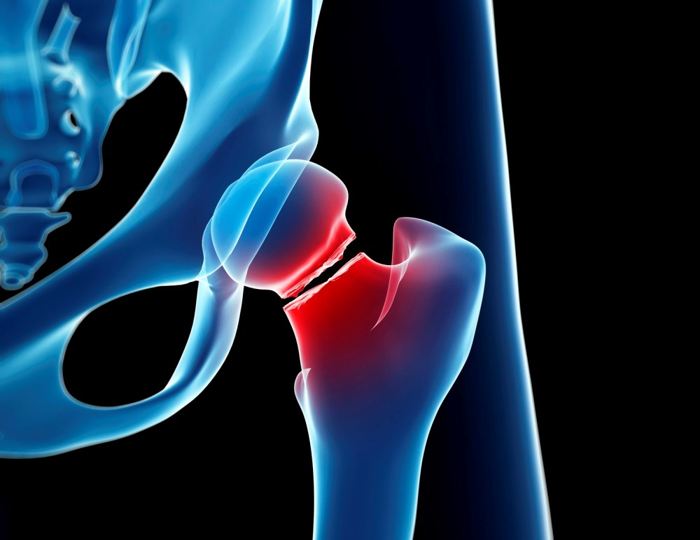 Osteoporotic fracture risk linked to mental disorders and related medication use