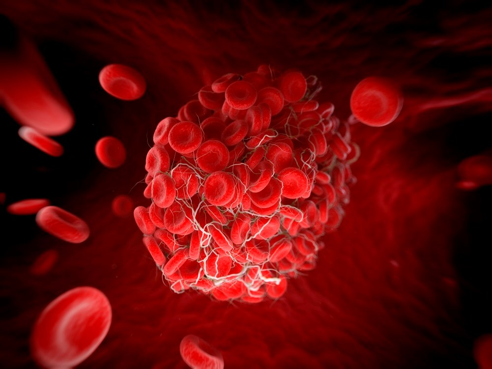 Anticoagulation therapy may be cost-effective for patients with a predicted 1-year VTE risk of 17.5% or more.