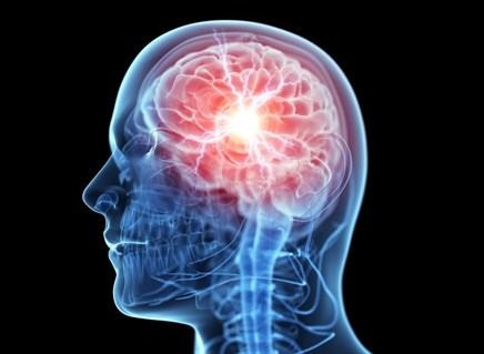 Sleep disturbances after traumatic brain injury
