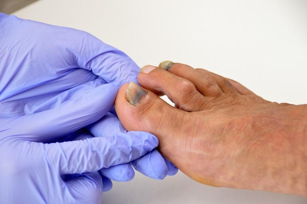 Ortho Dx case: Is it a subungual hematoma or melanoma?