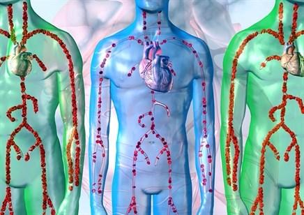 Managing systolic heart failure