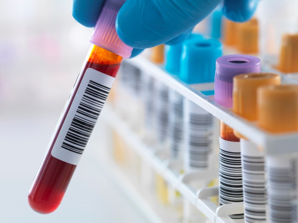 Blood-borne viruses more common in patients with severe mental illness