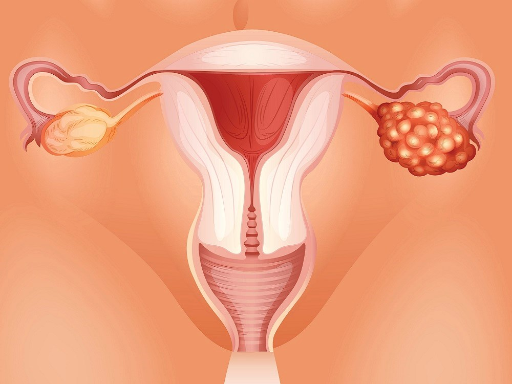 Multimodal Ovarian Cancer Screening May Be Cost-Effective in the United States