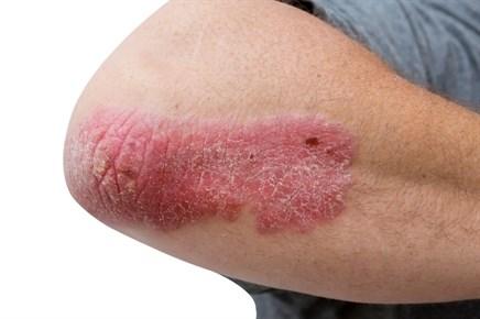 Dalazatide effective for skin lesions in plaque psoriasis
