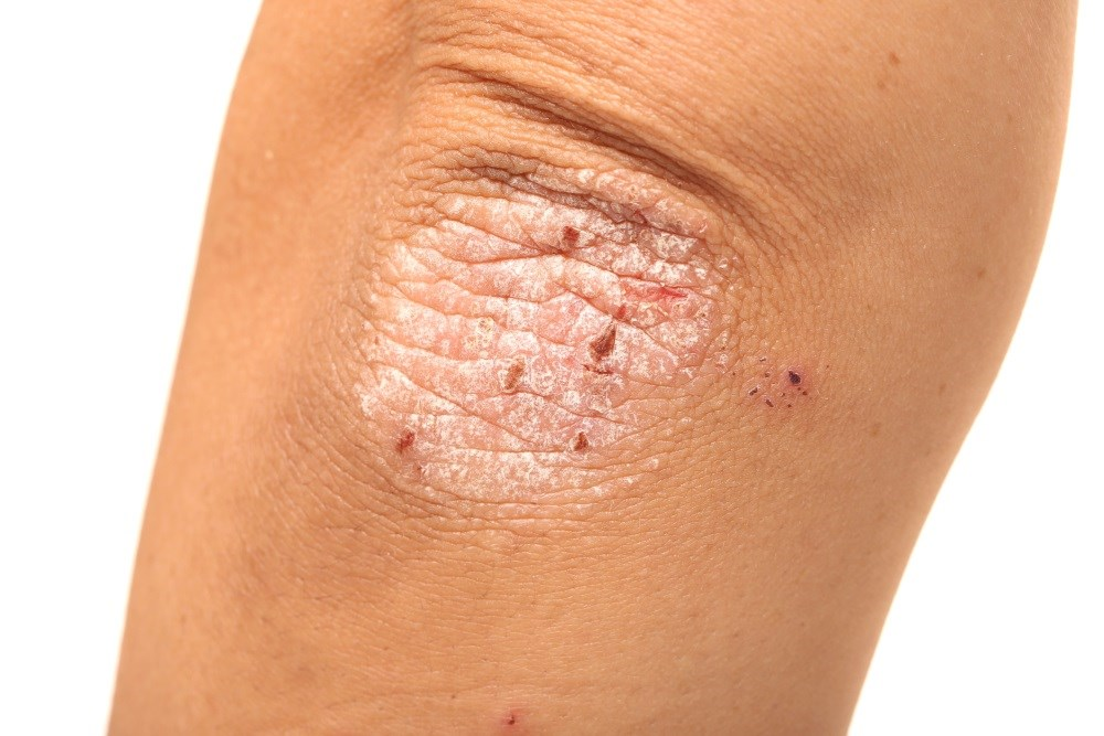 Biosimilar ABP 501 and adalimumab safe and effective for plaque psoriasis