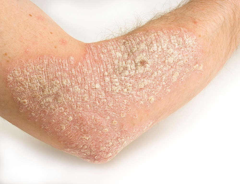 Severe psoriasis linked to higher mortality risk