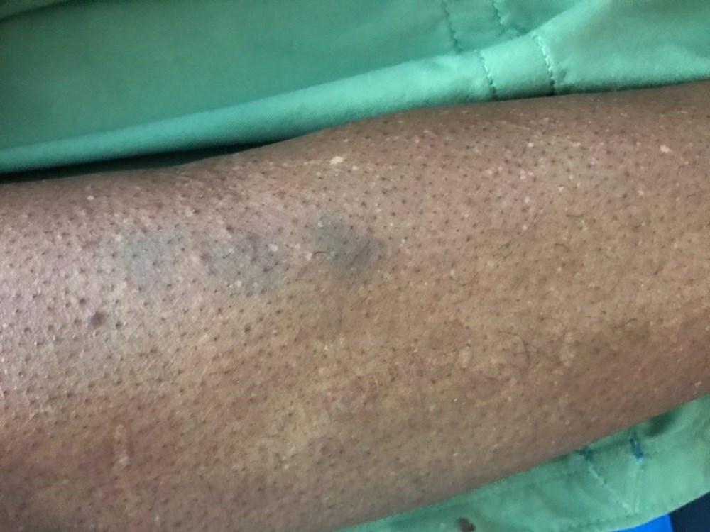Case Study: Sore throat and bruises
