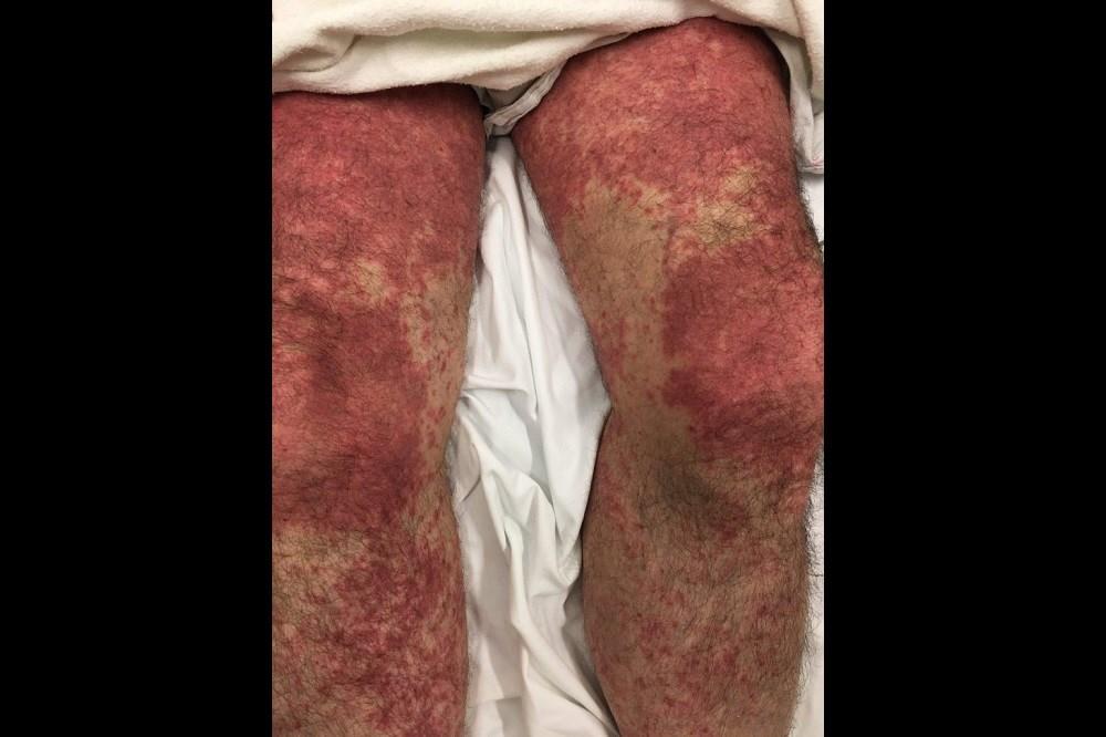 Case Study: Diarrhea and rash