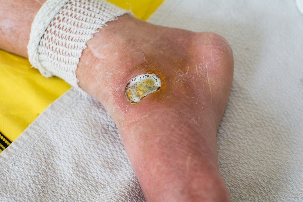 FDA approves shock wave device to treat diabetic foot ulcers