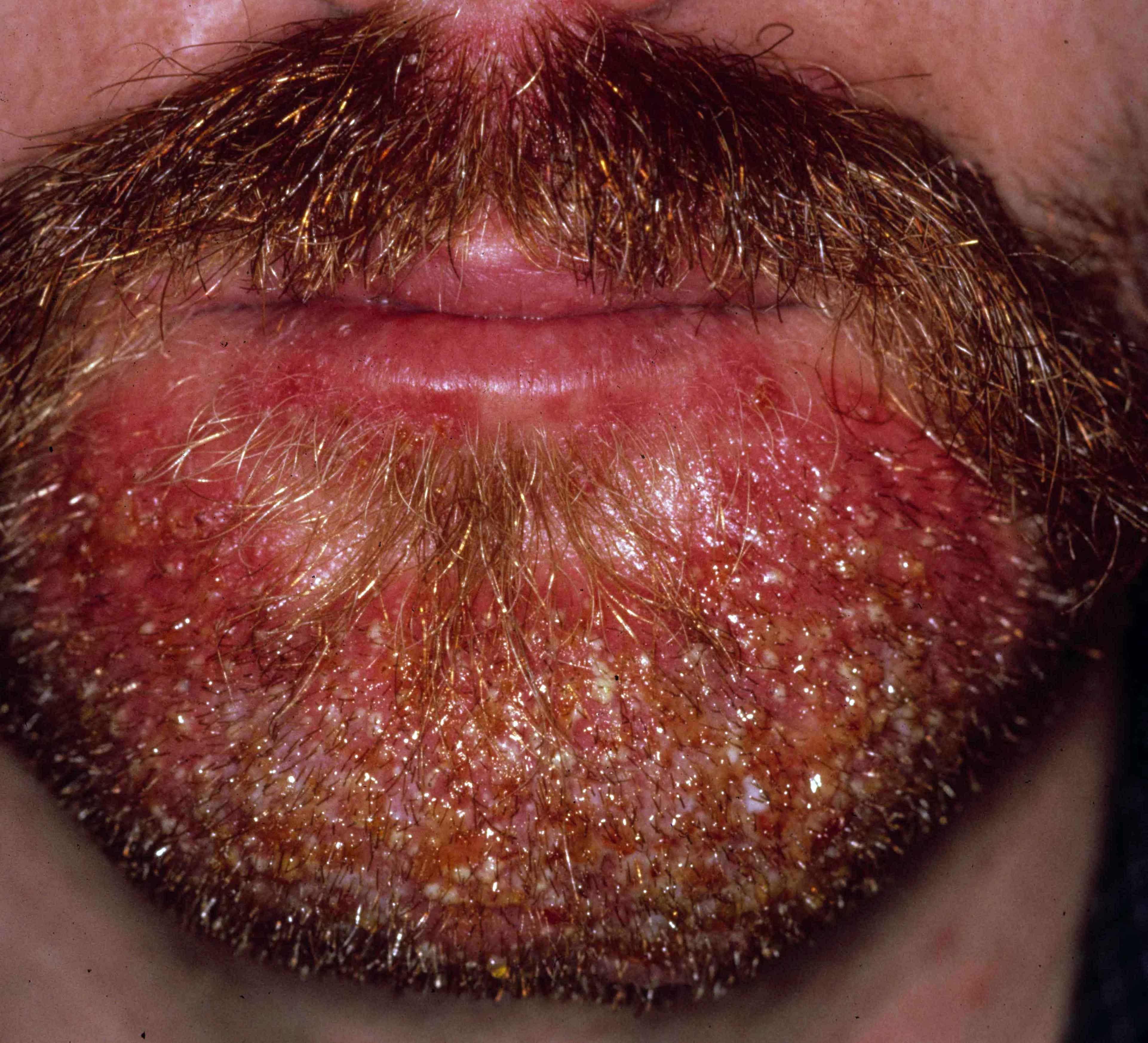 Tinea barbae (dermatomycosis barbae, schimmelinfectie van ...