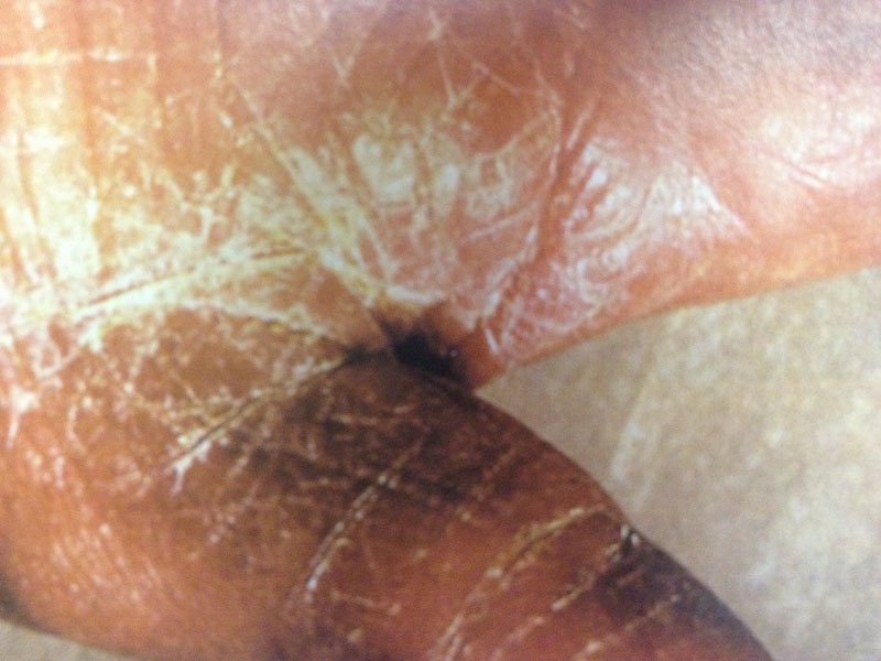 irritant contact dermatitis irritant dermatitis