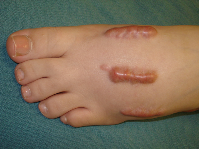 keloids and hypertophic scars (keloid and hypertrophic scars, Skeleton