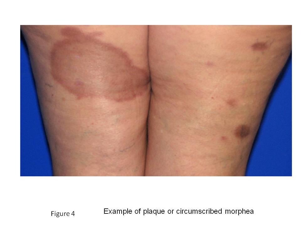 scleroderma plaque type morphea facial jpg 1200x900