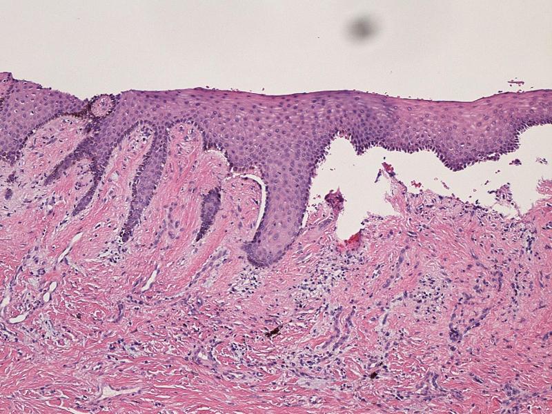 Cicatricial Pemphigoid: Background, Pathophysiology ...
