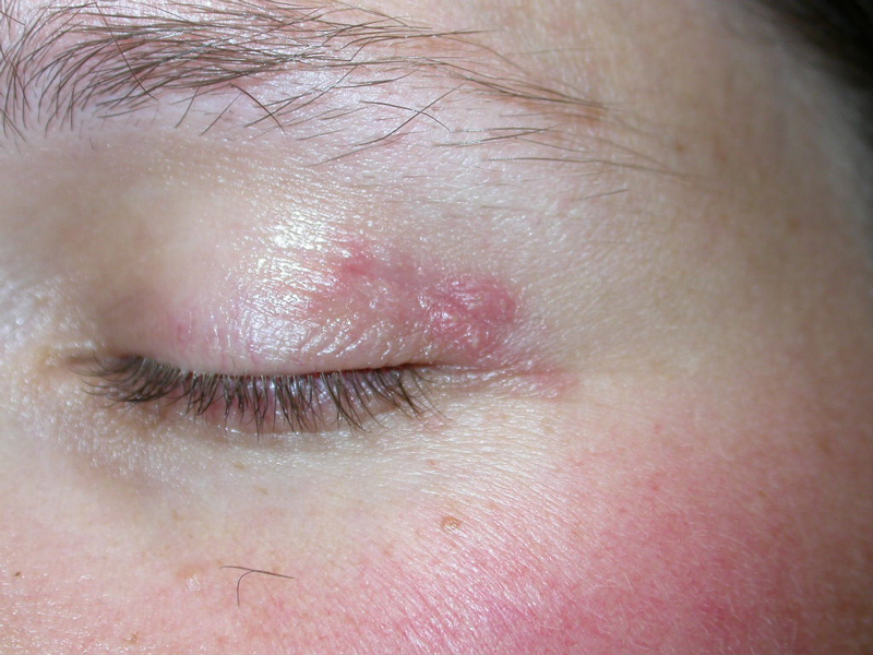 topical steroids for cystic acne