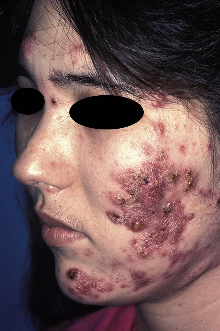 Rosacea Fulminans (Pyoderma Faciale) - The Clinical Advisor