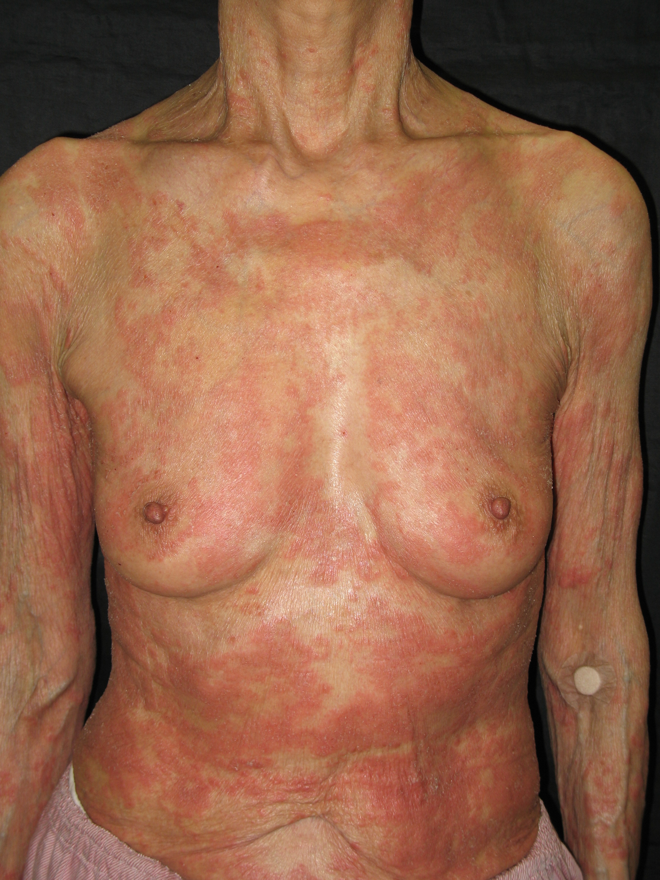 Schnitzler syndrome | Genetic and Rare Diseases ...