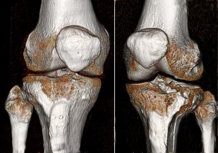 Open reduction internal fixation orif of tibial plateau - Tibial plafond fracture classification ...