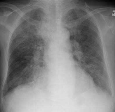 Pneumocystis Pneumonia  The Clinical Advisor. Leah Signs. Treasure Signs Of Stroke. Psychiatric Signs Of Stroke. Minnie Mouse Party Signs Of Stroke. Different Signs. Caused Air Pollution Signs. March Zodiac Sign Signs. Plywood Frame Signs