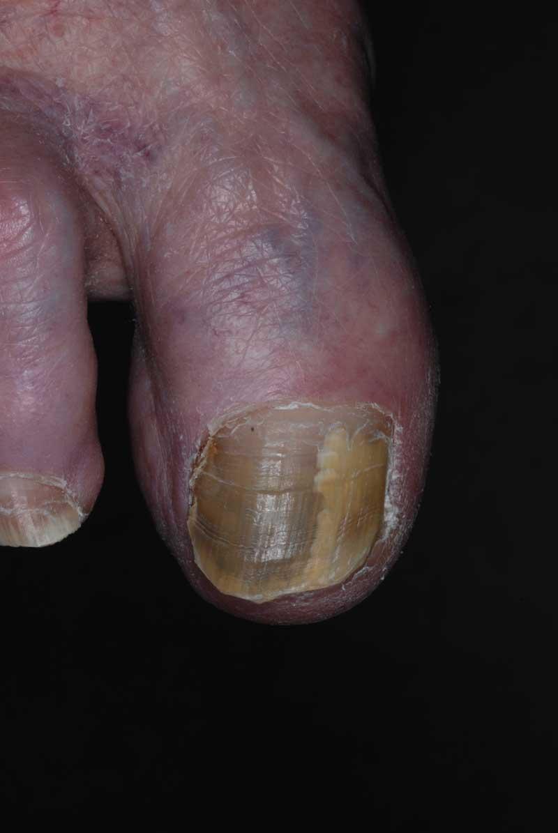 Ciprofloxacin pseudomonas infection of the nail