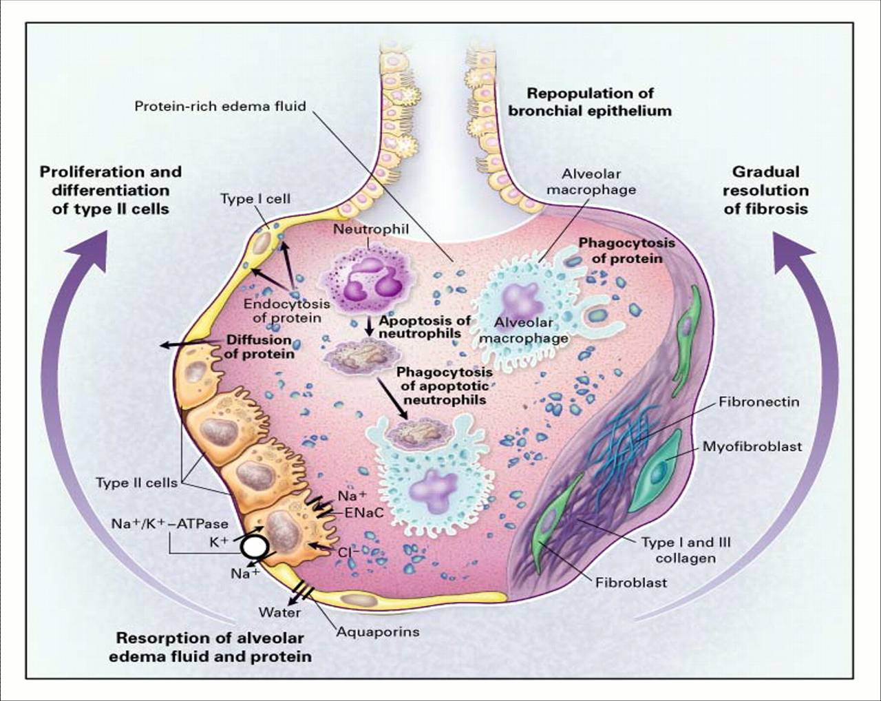 adult respiratory distress syndrome ards essay