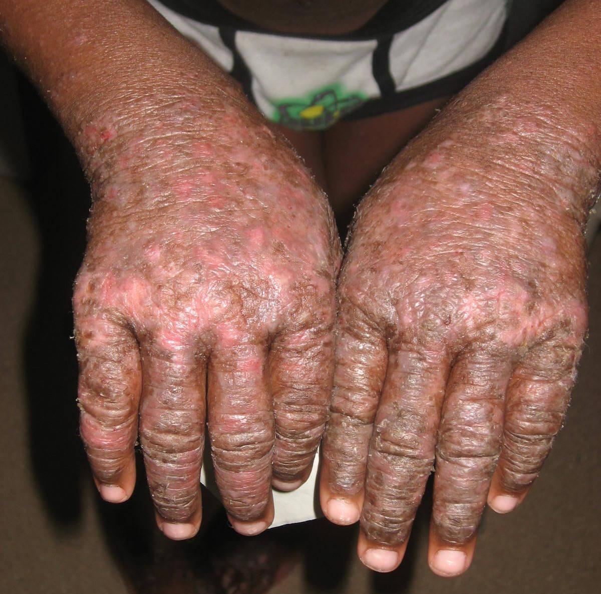 Atopic Dermatitis (Atopic Eczema) - The Clinical Advisor