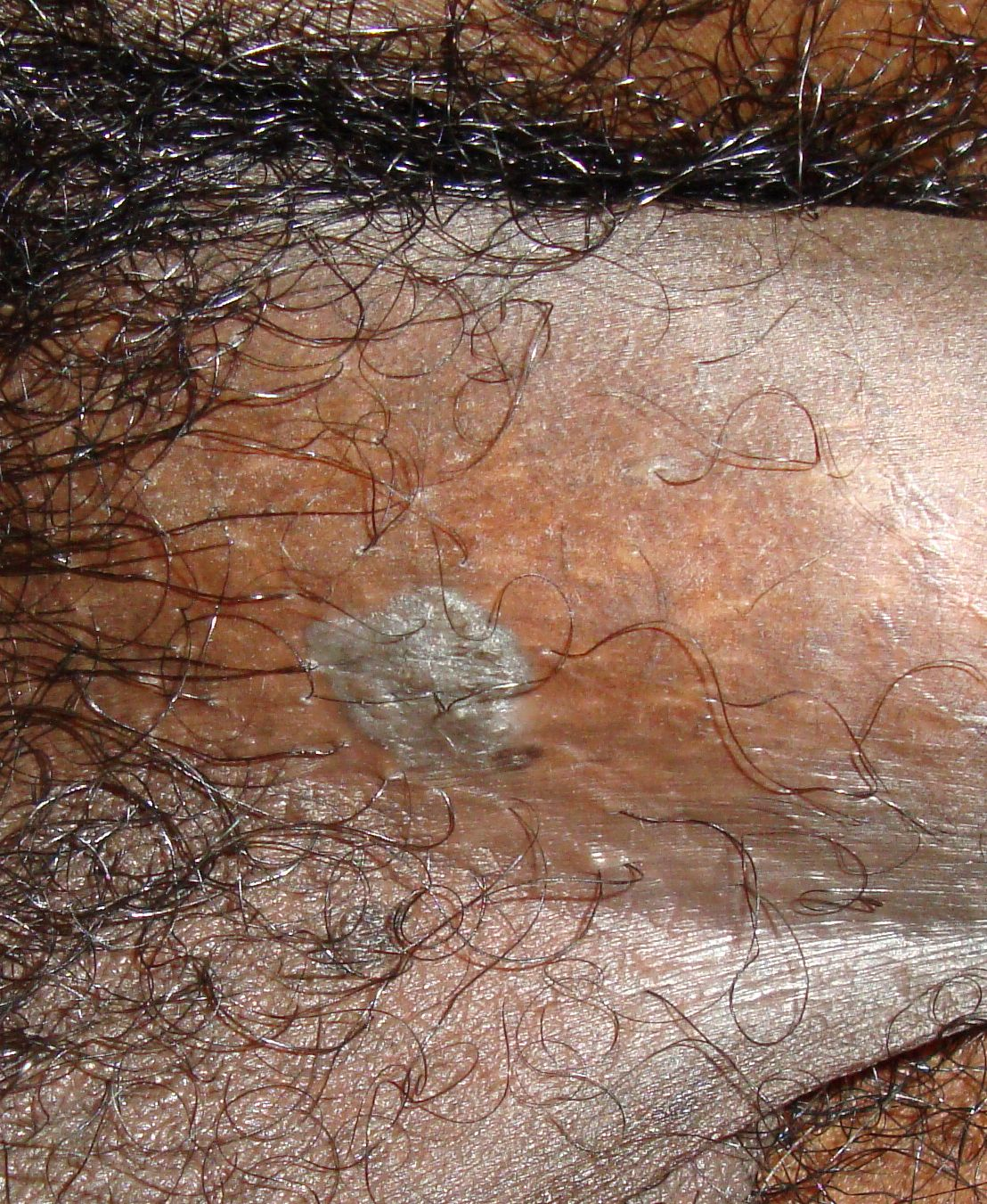 Condyloma Acuminatum Genital Warts The Clinical Advisor