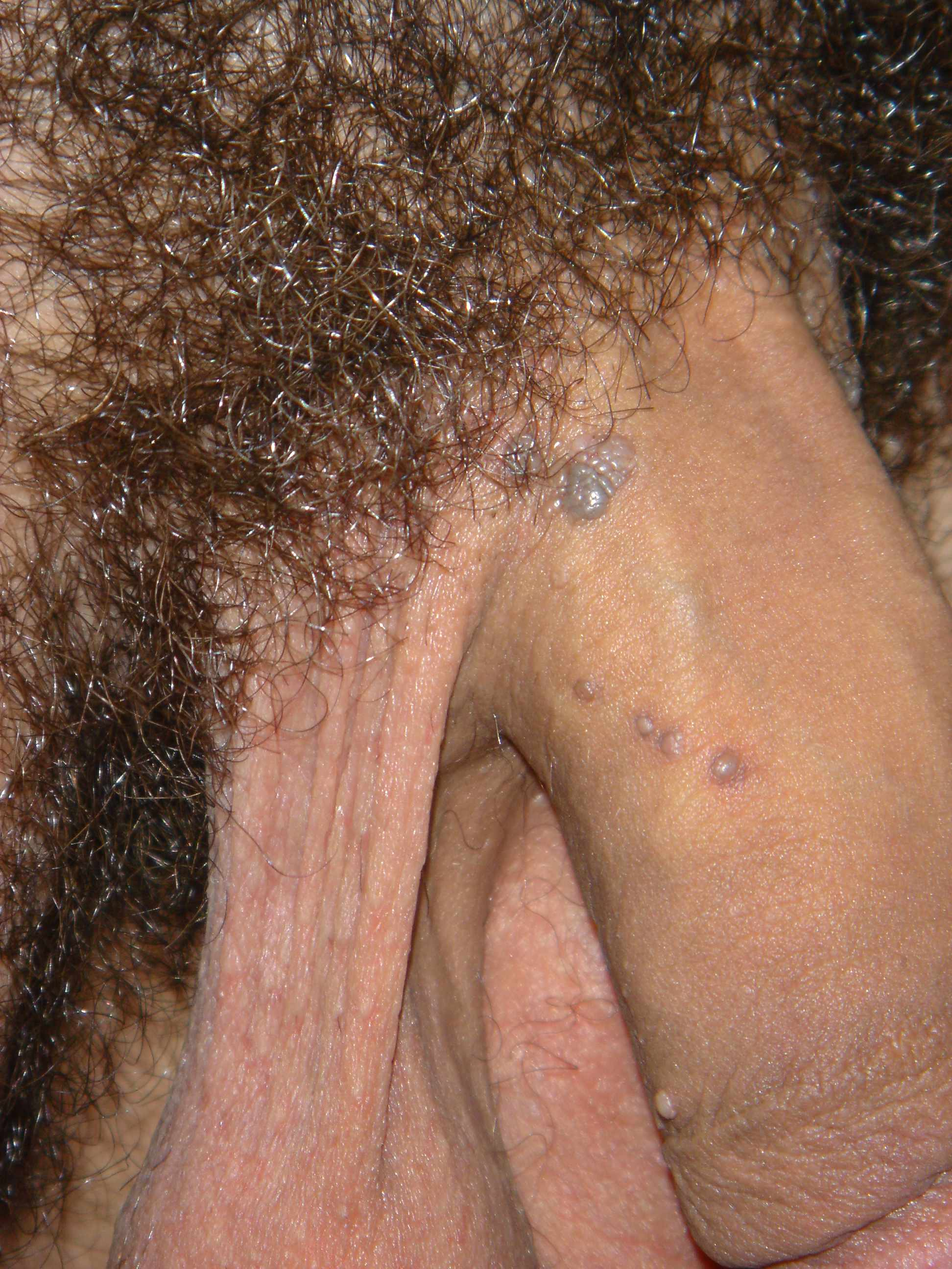 Cutaneous Penile Lesions - Genitourinary Disorders - Merck ...